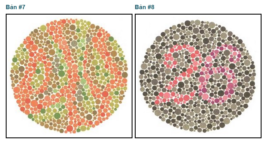 Kiểm tra mù màu cho người đi Xuất khẩu lao động Nhật Bản